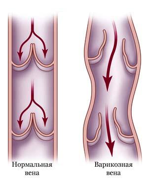Дуплексное сканирование сосудов артерий и вен нижних конечностей